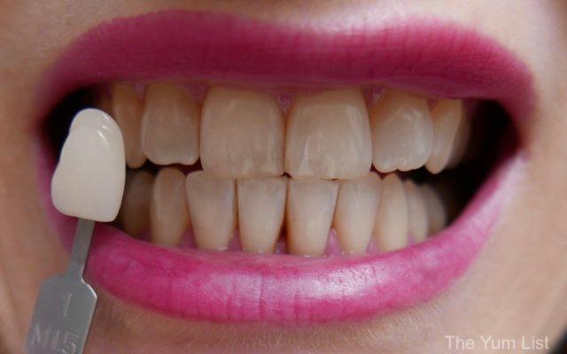 Teeth Whitening Malaysia